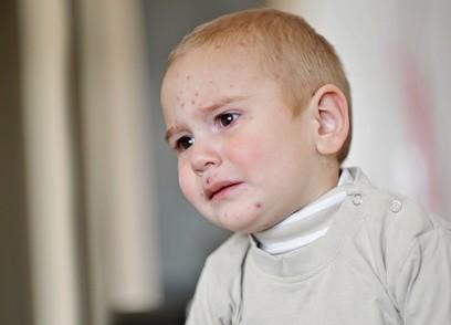 kleinkinder-mit-neurodermitis-bio-baumwoll-kleidung